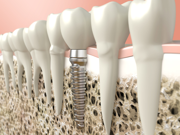 Dental implants are done by our dentists.