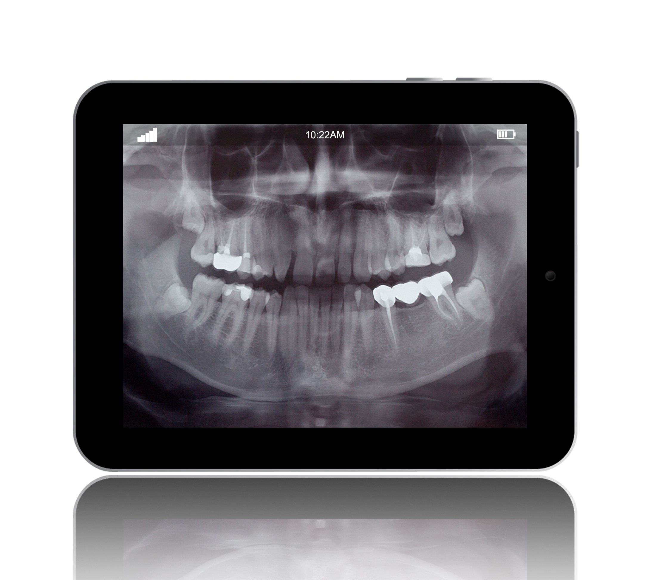 Image of a digital x-ray from Ford Dental Group in Huntington Beach, CA