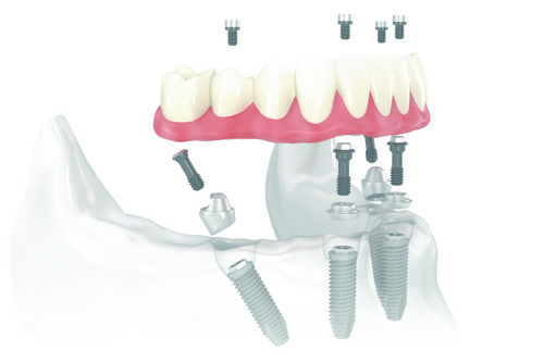 One of the many dental implant options that are offered by our dentists.