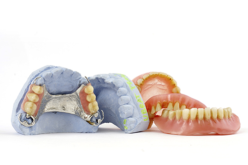 If you are missing teeth, a denture can be an affordable solution.