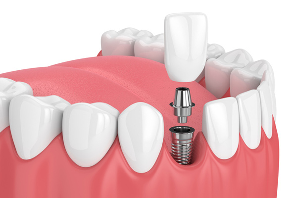Diagram of a single dental implant from Ford Dental Group in Huntington Beach, CA