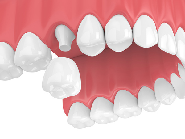 Rendering of a jaw with a porcelain dental crown from Ford Dental Group in Huntington Beach, CA