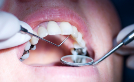 Do Cavities Between the Teeth Do More Damage?