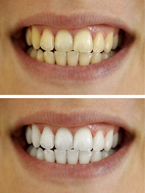 A patients smile before, and after whitening treatment.